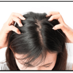 5 Not-So-Common Symptoms of Lice